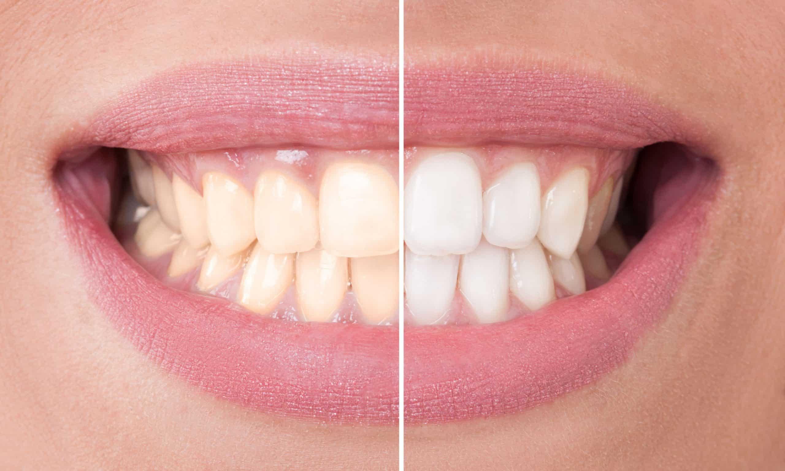 Tulsa Female Dentist